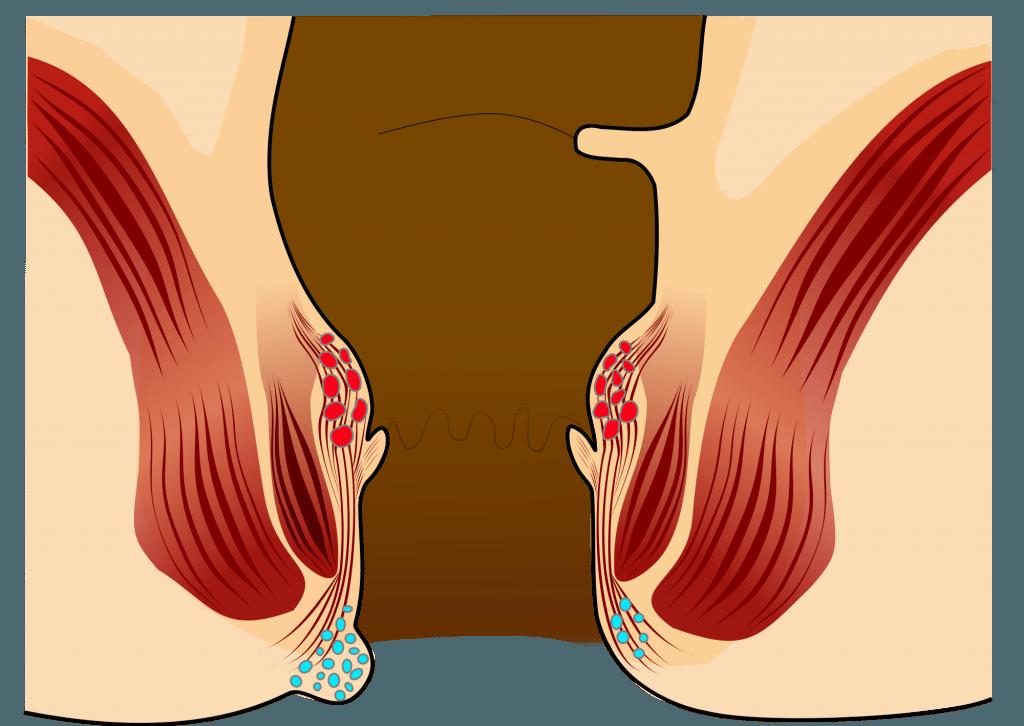 przyczyna hemoroidów