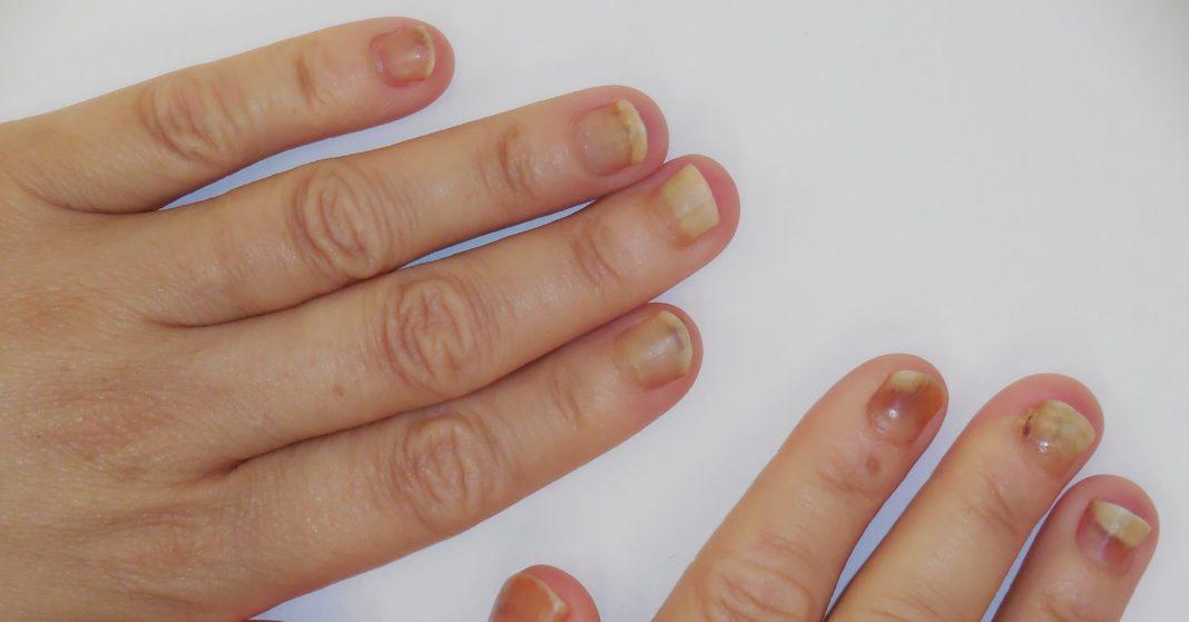 Znalezione obrazy dla zapytania onycholiza leczenie