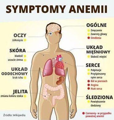 dieta anemia z niedoboru żelaza