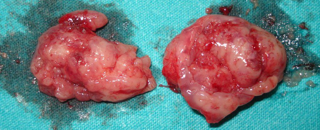 dwa migdalki usunieta przez specjaliste chirurga